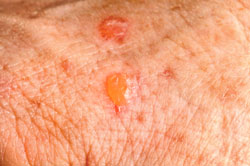 Skin cancer and mohs
